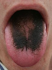 Adult tongue with a strikingly black top