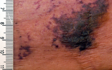 Multiple purpura and early necrosis of skin