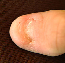 Big toe with most of the toenail missing; only the nail's root is present