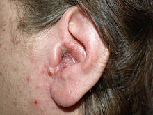 Exudate over a background of redness on the external ear canal of an adult