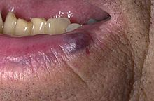 A small blue to purple colored lesion on the lower lip of an adult
