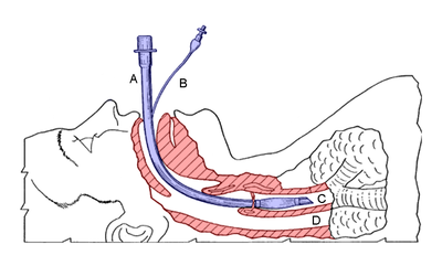 Diagram of an endotracheal tube that has been inserted into the airway