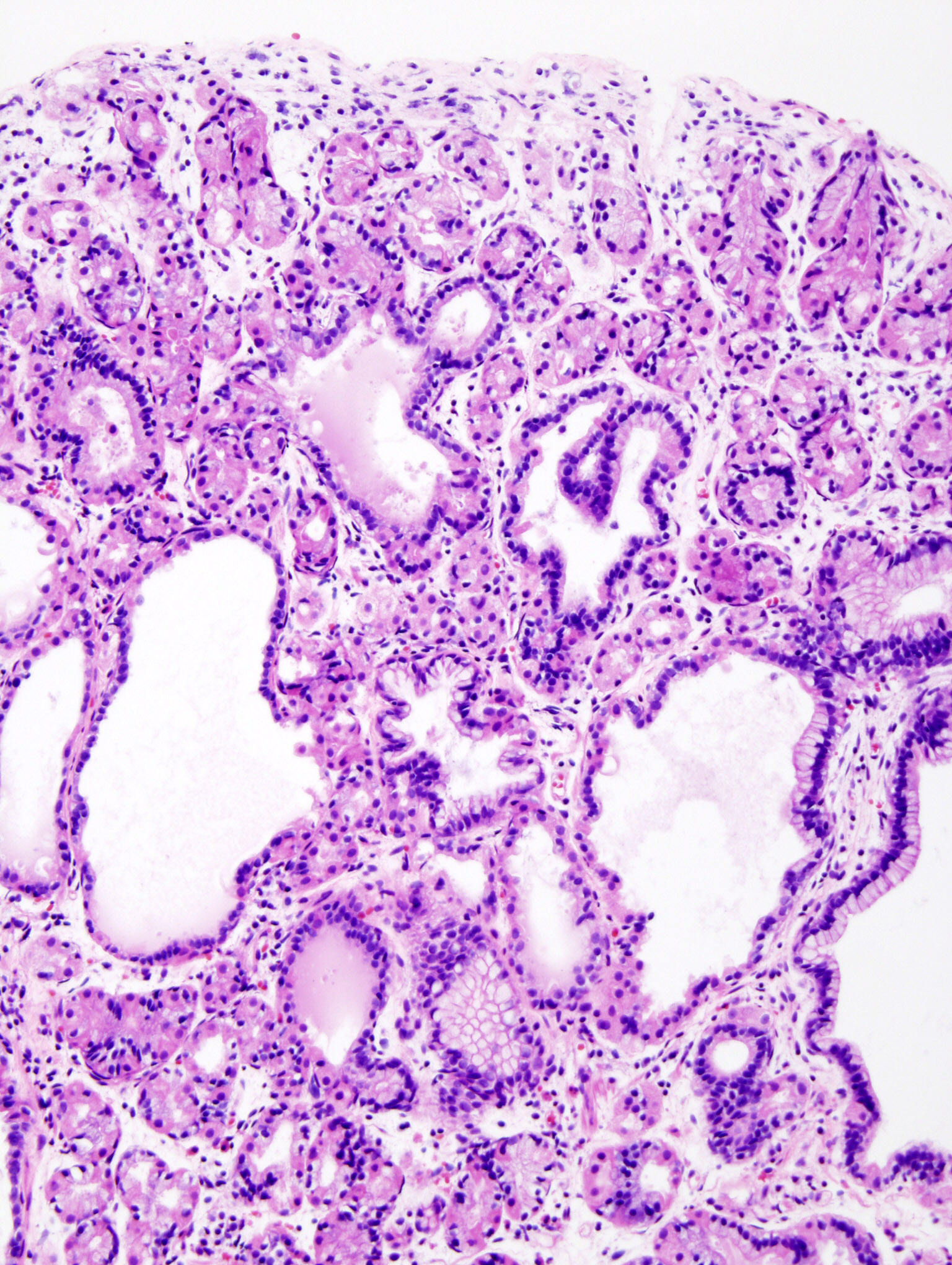 Gastric Chief Cell