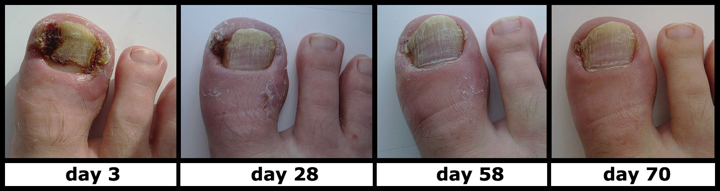 Conservative treatment of ingrown toe nails